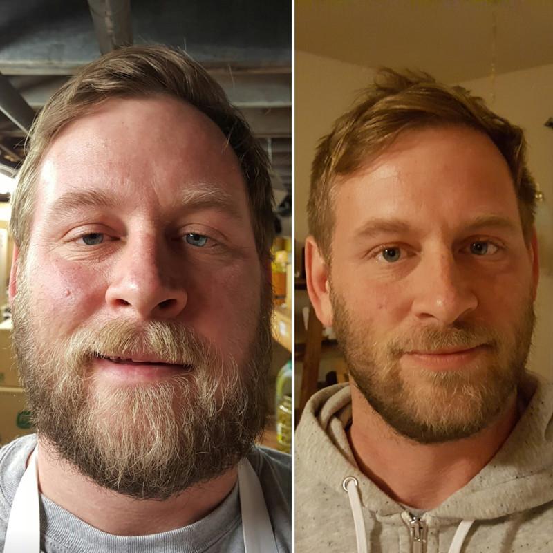 (19 foto) Acesti oameni pur si simplu s-au lasat de baut: uite cat de mult s-au schimbat!